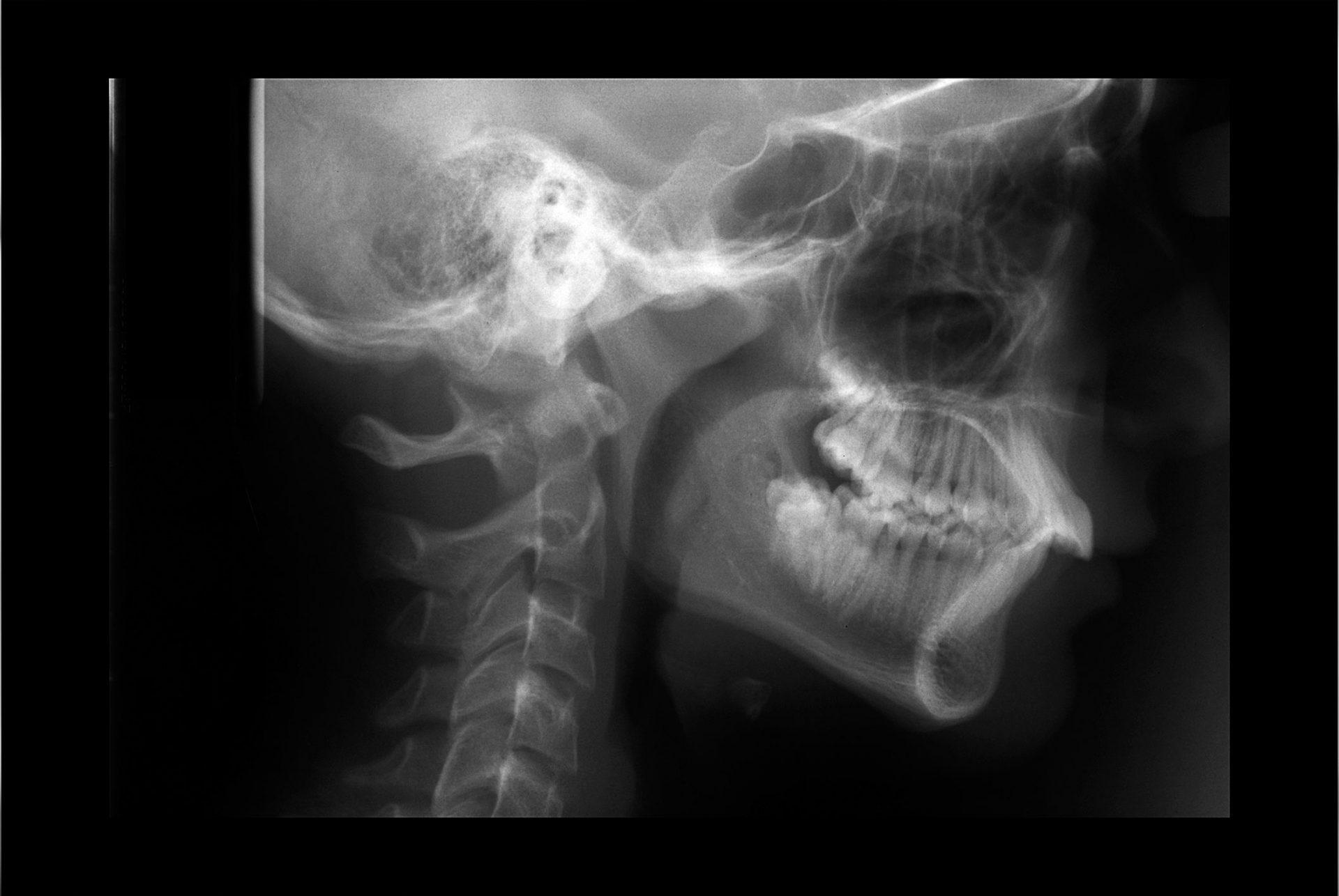 røntgen av hode