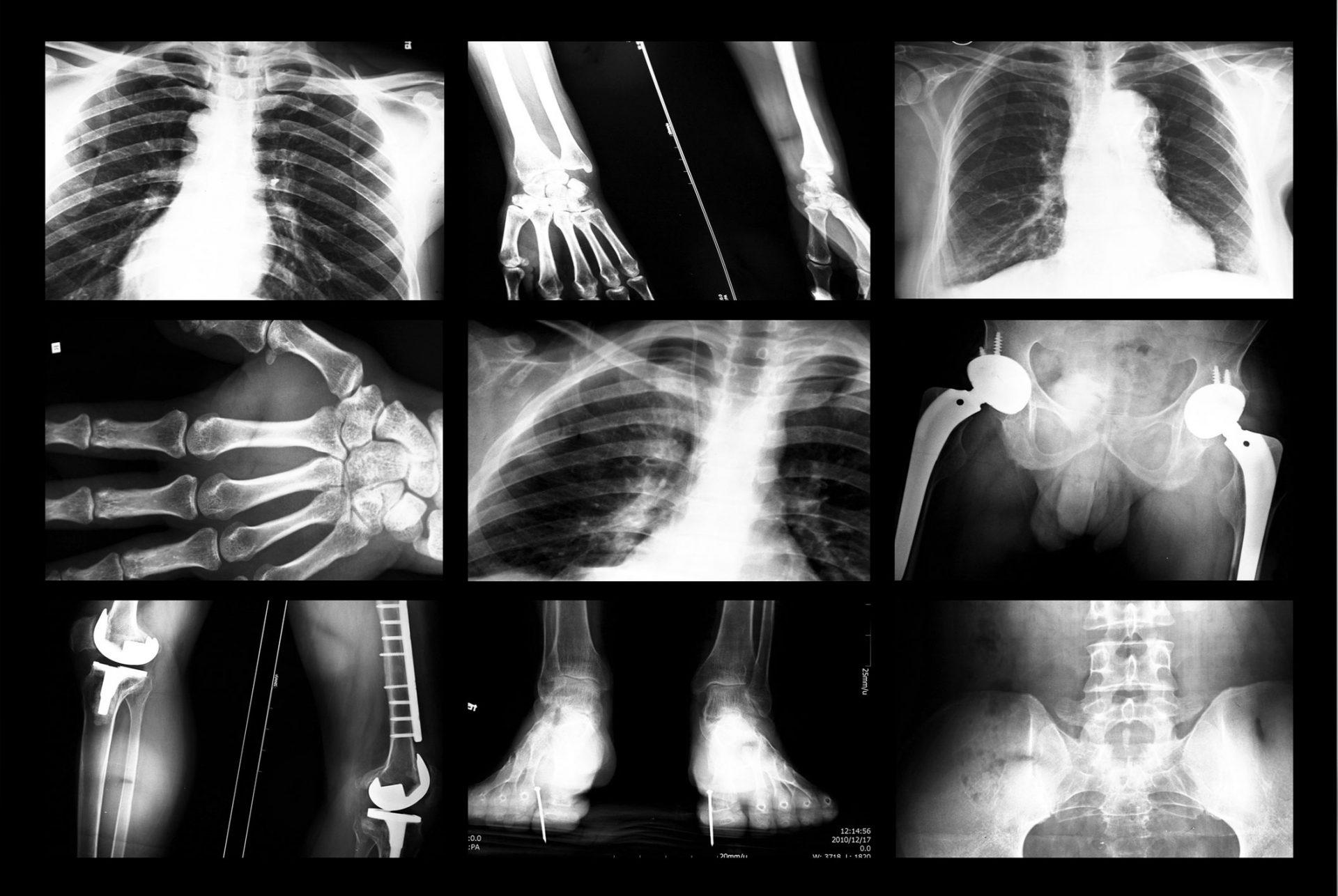 røntgen av skjelett