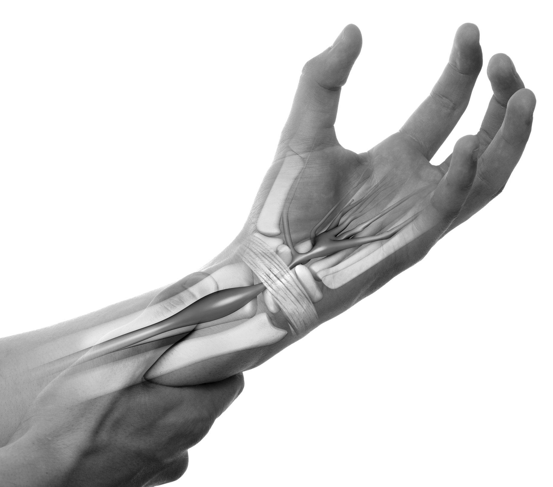 senebetennelse i håndledd
